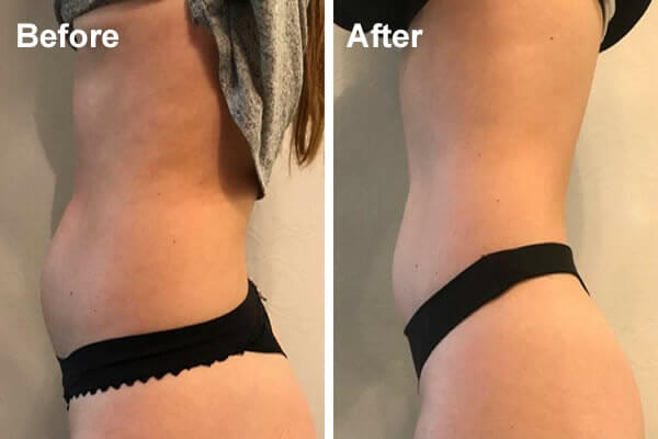 Sample Results For Fat Freezing Shared By Ice Lipo New Zealand