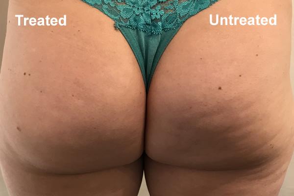 Fat Cavitation Treatment Results By Ice Lipo New Zealand