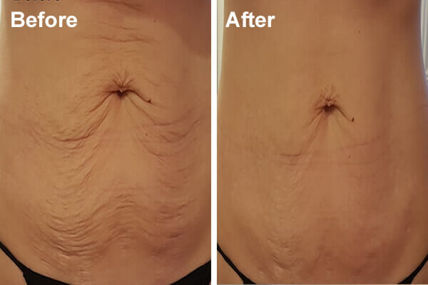 RF Skin Tightening Equipment Used By Ice Lipo New Zealand